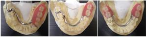 義歯163