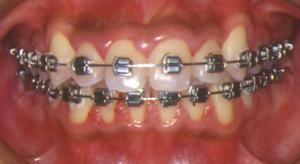 非抜歯-3