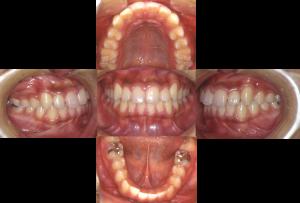 非抜歯-6