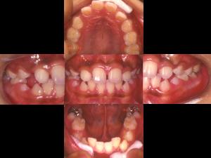 非抜歯-1